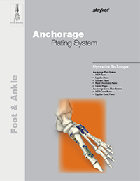 Anchorage Plating System